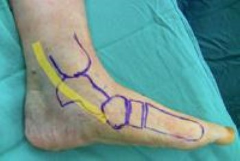 Location of posterior tibial tendon