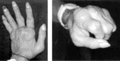 Photo of rheumatoid arthritis of the hand