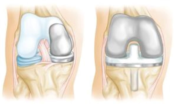 uni knee replacement implant and total knee replacement implant