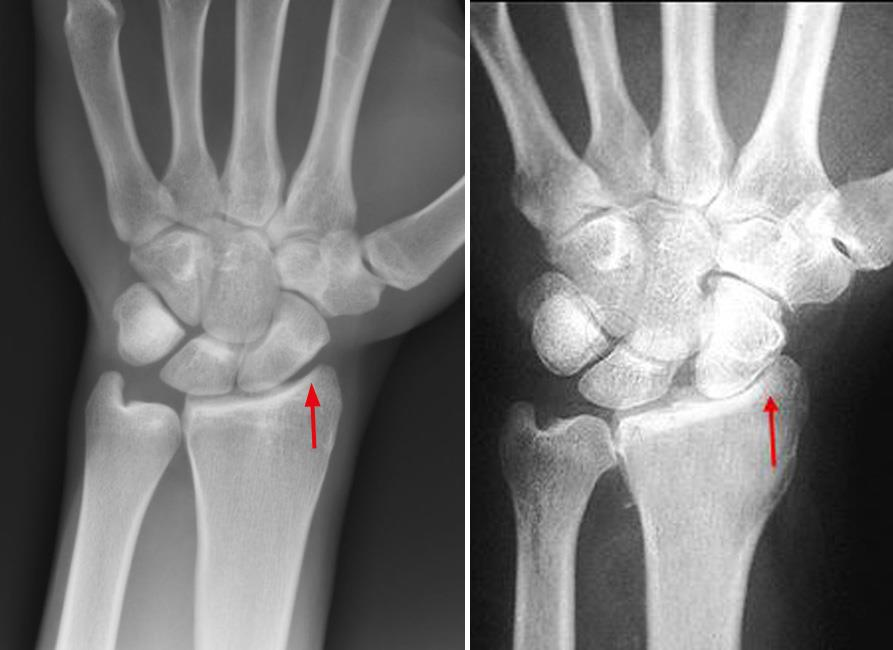 X-rays of healthy wrist and arthritic wrist
