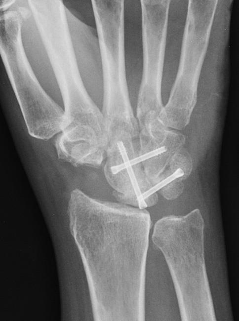 X-ray of partial wrist fusion