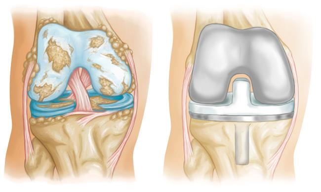 Damaged knee and knee replacement
