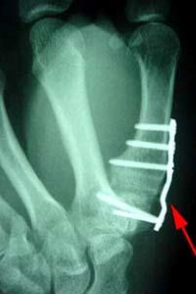 X-ray of joint fusion at base of thumb