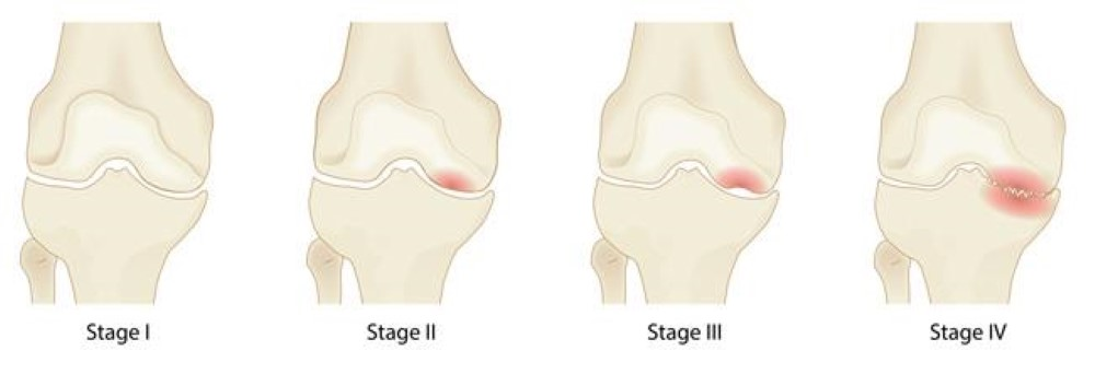 The four stages of osteonecrosis of the knee