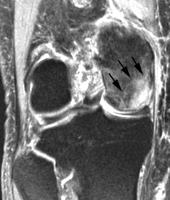 MRI scan of osteonecrosis