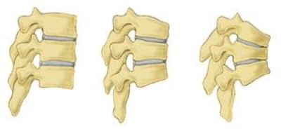 Illustrations of normal vertebrae and vertebrae with osteoporosis