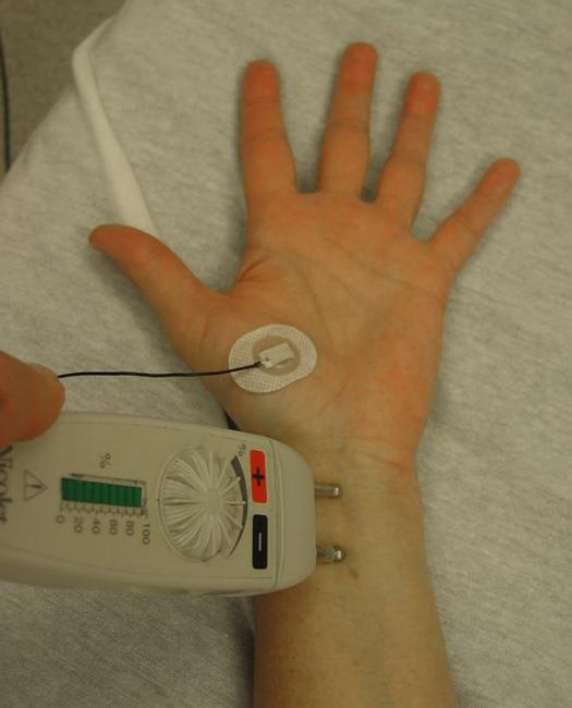 Close up of an EMG being performed with a nerve conduction study.