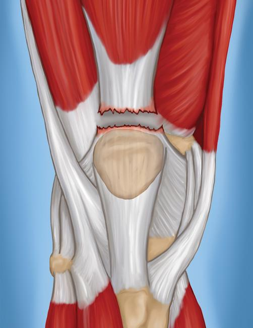 A complete tear of the quadriceps tendon