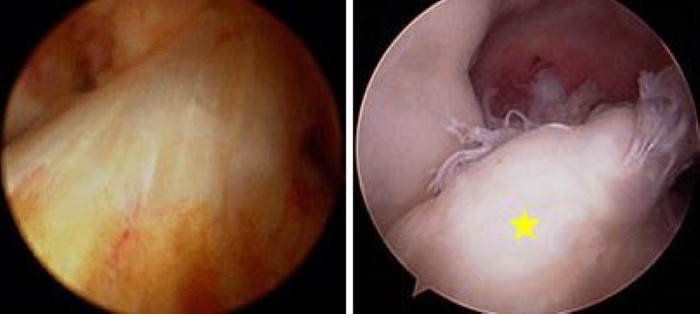 arthroscopic images of normal ACL and ACL tear