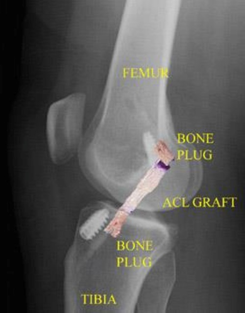 post-operative x-ray of ACL reconstruction