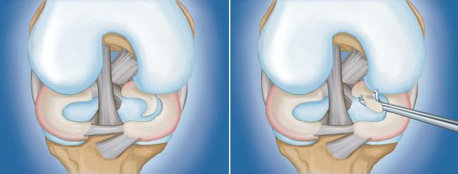 Illustrations of a flap tear and arthroscopic removal of meniscal tissue