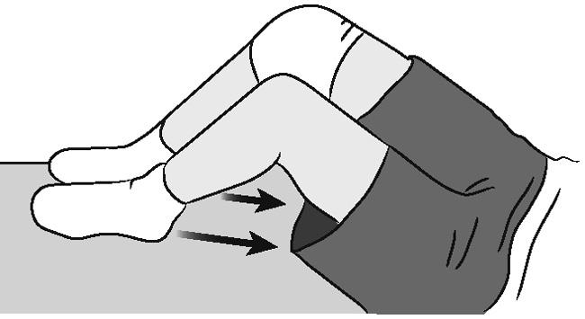 Hamstring contraction