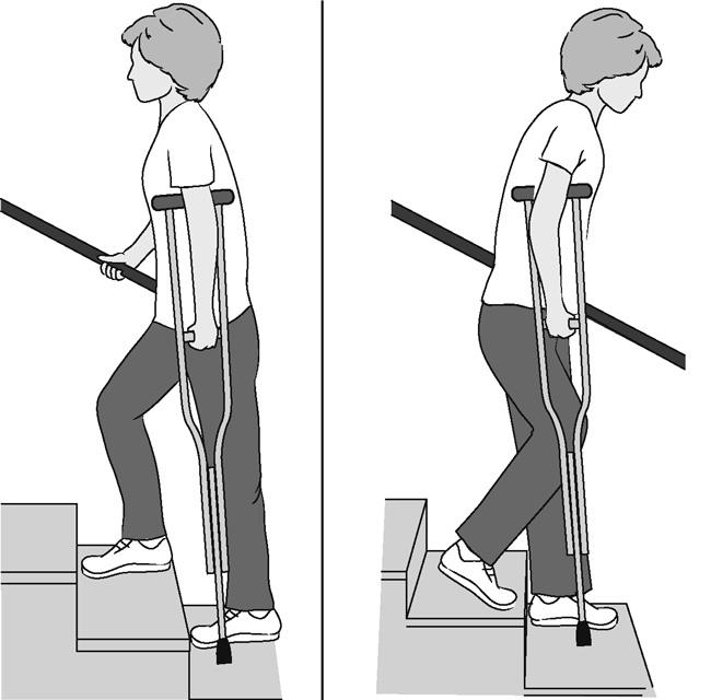 Illustration of woman climbing and descending stairs using a crutch