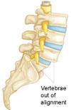 Illustration of spondylolisthesis