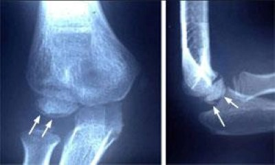 X-ray showing effects of excessive throwing