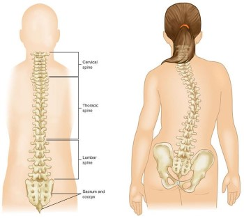 Idiopathic Scoliosis In Children And Adolescents