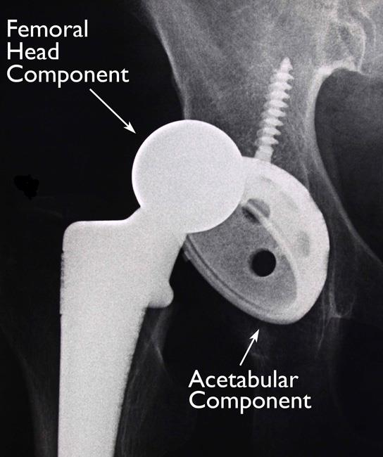 Hip implant dislocation