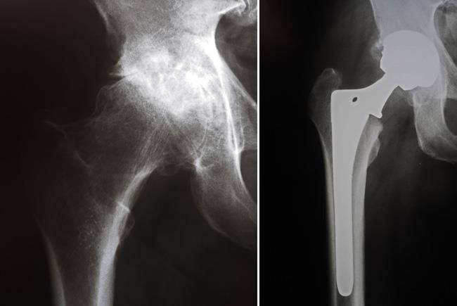 X-rays before and after total hip replacement.