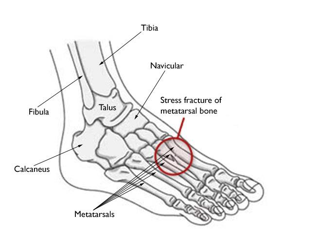 The most common sites for stress fractures in the foot are the metatarsal bones.