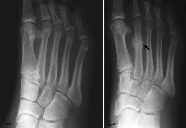 x-ray of stress fracture in metatarsal
