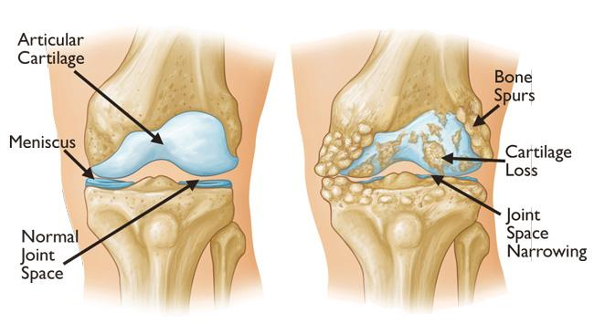 osteoarthritis and bone spurs