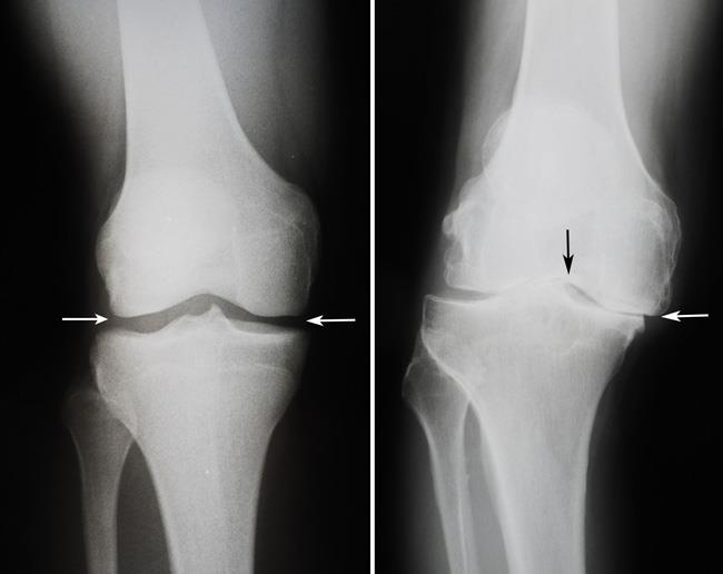x-rays of a healthy knee and a knee with osteoarthritis