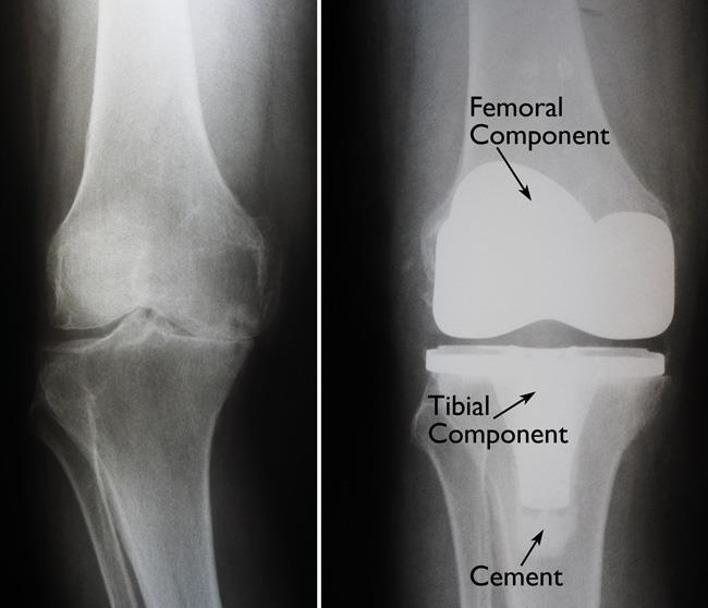 x-rays of severe knee arthritis and knee replacement
