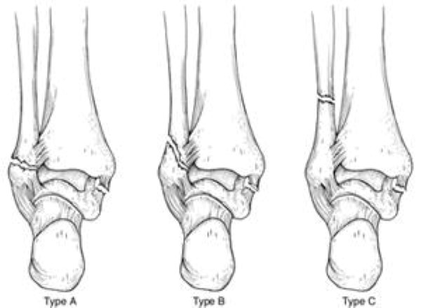 lateral malleolus fractures