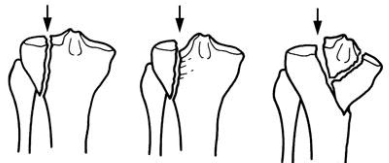 Illustration of tibia fractures that enter the knee joint