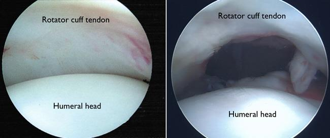 Arthroscopic photos of healthy shoulder joint and rotator cuff tear