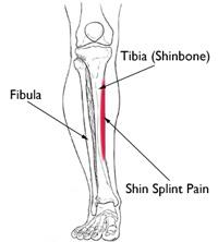 Location of pain from shin splints
