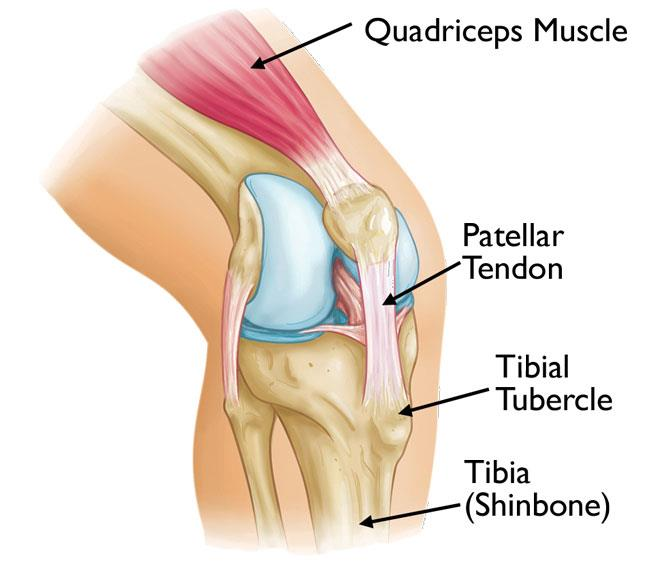 Osgood-Schlatter disease causes pain at the tibial tubercle — the bony bump where the patellar tendon attaches to the tibia (shinbone).
