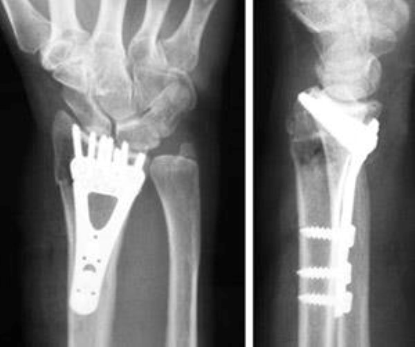 internal fixation for distal radius fracture
