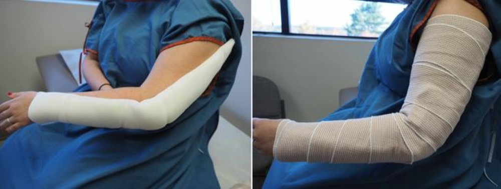 Photo of patient wearing a splint for an olecranon fracture
