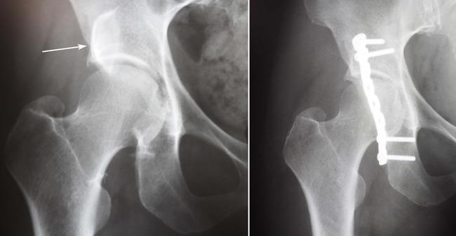 Acetabular Fractures - OrthoInfo - AAOS