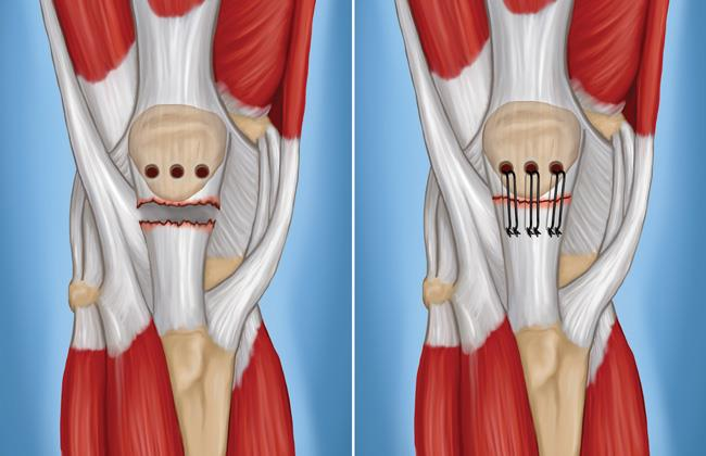 surgery for patellar tendon tear