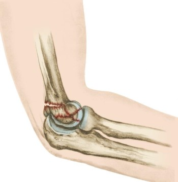 Distal Humerus Fractures of the Elbow - OrthoInfo - AAOS