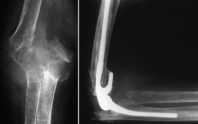 A distal humerus fracture treated with elbow joint replacement