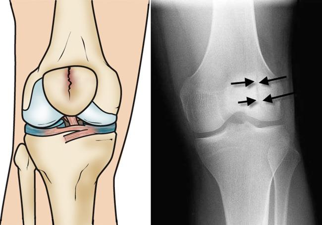 Illustration and x-ray show a vertical, stable fracture of the patella.