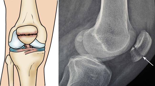 Illustration and x-ray show a transverse patella fracture