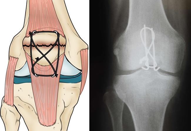 a figure-of-eight tension band holds a patellar transverse fracture together