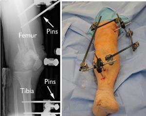External fixation of distal femur fracture