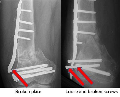 Broken plate and screws in a poorly healing distal femur fracture