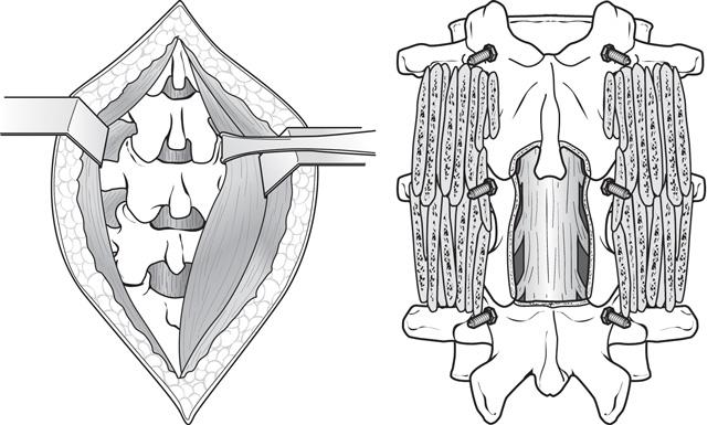 Illustration of a laminectomy