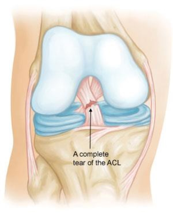 complete tear of the ACL