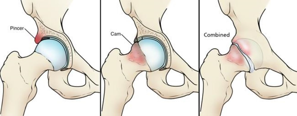 types of femoroacetabular impingement