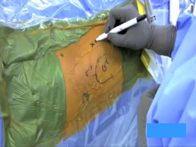 A surgeon draws on the hip to indicate where to make incisions.