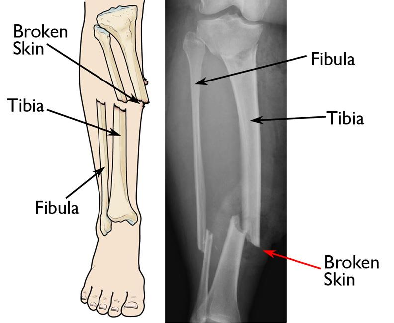 Illustration and x-ray show an open fracture