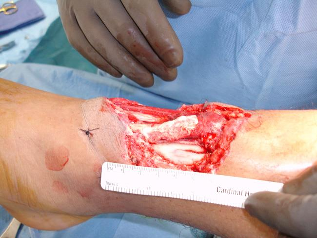 open fracture that cannot be closed with stitches