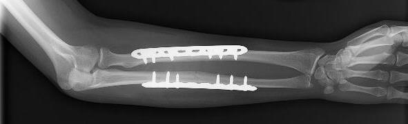 forearm fracture fixation with plates and screws